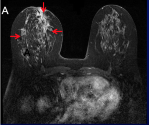 image from an MRI showing lobular breast cancer in the right breast